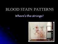 Blood stain patterns