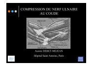COMPRESSION DU NERF ULNAIRE AU COUDE - ClubOrtho.fr