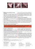Mottfeuer schaden der Umwelt - Seite 2
