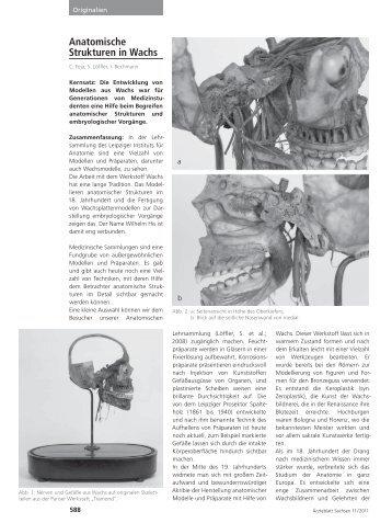 Anatomische Strukturen in Wachs