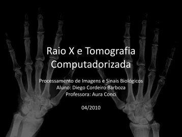 Raio X e Tomografia Computadorizada