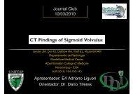 Volvo de sigmóide - (DDI) - UNIFESP