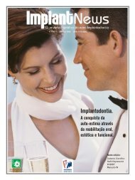 6659-Revista V.5-n.1.indd - ImplantNews