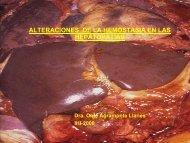 Alteraciones complejas de la hemostasia en las hepatopatías