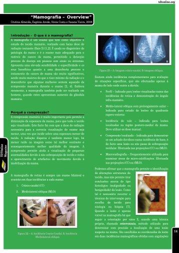 Mamografia – Overview - Imagenologia