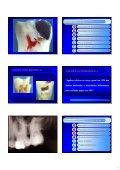 Aspectos de interesse à endodontia - endodontia.com.br - Page 5