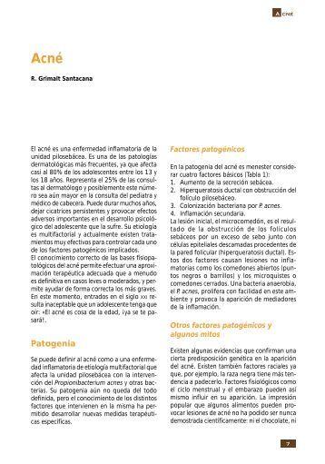 Acné - Asociación Española de Pediatría