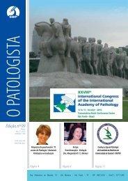 Edição nº 99 - Sociedade Brasileira de Patologia
