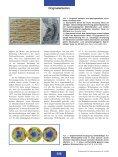 Arteriosklerose - Seite 3