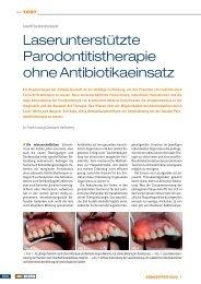 Laserunterstützte Parodontitistherapie ohne ... - Zantomed