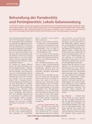 Behandlung der Parodontitis und Periimplantitis: Lokale ... - Zantomed
