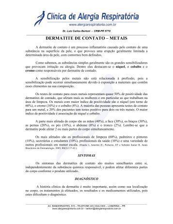 DERMATITE DE CONTATO – METAIS - Intersoft