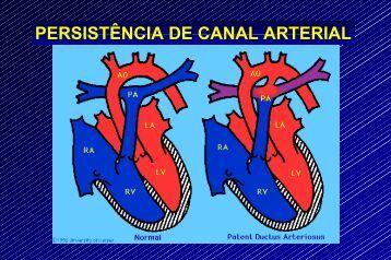 Persistência de Canal Arterial - Prefeitura de São Paulo