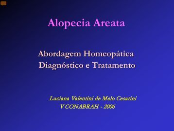 Alopecia areata x Homeopatia