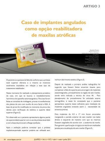 Caso de implantes angulados como opção reabilitadora ... - ILAPEO