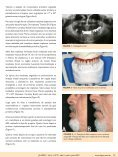 Caso de implantes angulados como opção reabilitadora ... - ILAPEO - Page 2