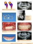 Caso de implantes angulados como opção reabilitadora ... - ILAPEO - Page 4