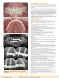 Caso de implantes angulados como opção reabilitadora ... - ILAPEO - Page 5