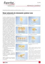 Nowe wskazania do stosowania systemu Lava - Super-Dent Szczecin