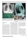 Elektronischer Sonderdruck für Dialysekatheter C.P. Schröders - Seite 3