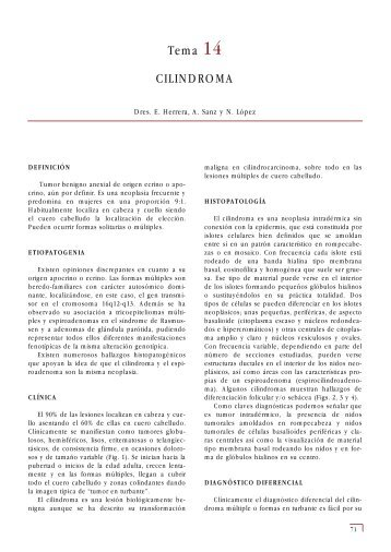 Tema 14 CILINDROMA - e-dermatosis.com