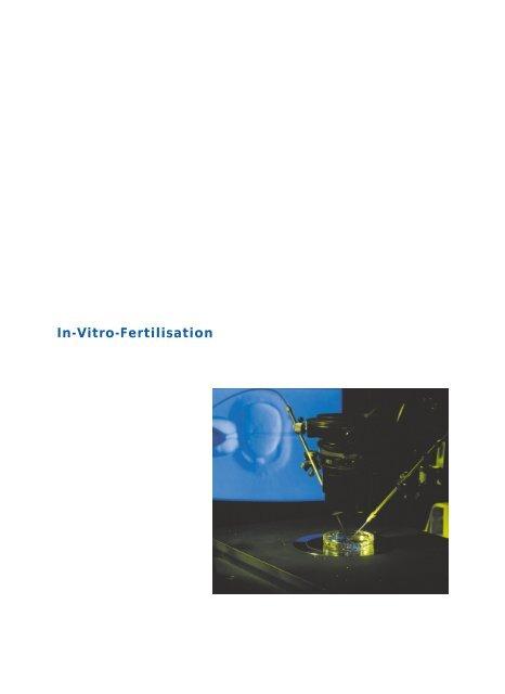 Die Behandlung: In-Vitro-Fertilisation - Dr. med. Peter Fehr