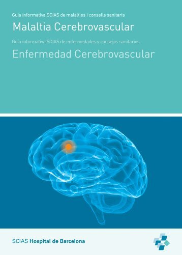 Malaltia cerebrovascular - Hospital de Barcelona