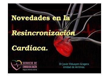 Novedades en Resincronización Cardiaca.