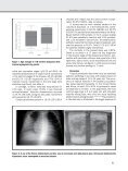 Clinical-laboratorial characteristics Toxocara canis serology and ... - Page 5