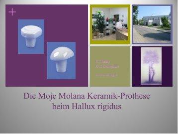 Die Moje Molana Keramik-Prothese beim Hallux ... - G.-Wiehebrink