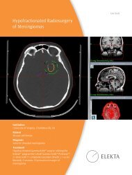 Hypofractionated Radiosurgery of Meningiomas - Medicine ...