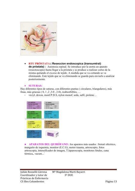 inflamación de la próstata que hace nylon
