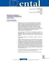 Hiperplasia Gingival y Tratamiento Ortodóncico: Caso Clínico - Ulacit