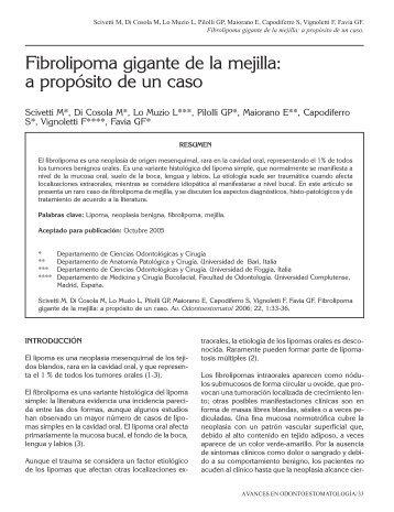 Fibrolipoma gigante de la mejilla: a propósito de ... - SciELO España
