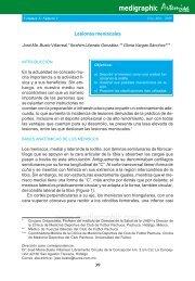 Lesiones meniscales - edigraphic.com