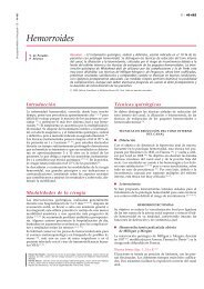 Hemorroides - cinco