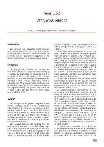 Tema 152 VERRUGAS VÍRICAS - e-dermatosis.com