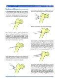 Roteiro para Instrumentação de Inserção de Parafusos Canulados - Page 2