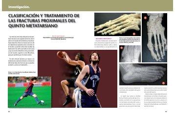 Clasificación y tratamiento de las fracturas proximales del quinto ...
