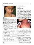 Consenso Mexicano del Tratamiento del Prurito - Page 5