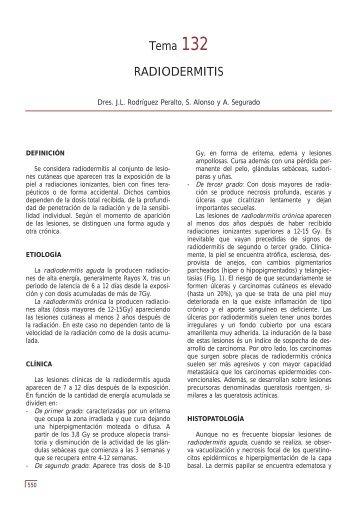 Tema 132 RADIODERMITIS - e-dermatosis.com