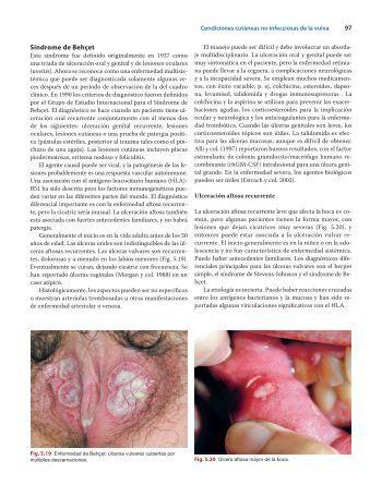 97 Síndrome de Behçet - Axon