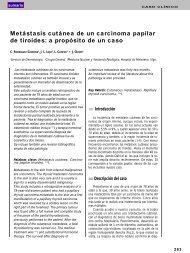 Metástasis cutánea de un carcinoma papilar de tiroides - El Médico ...