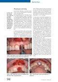 Barrieremembranen in der Knochen- regeneration - zwingend ... - Seite 3