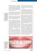 Barrieremembranen in der Knochen- regeneration - zwingend ... - Seite 5