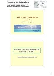 1-2-Neurofisiologia del sueño vigilia Polisomnografia normal