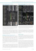 Pre-operative Planning for Endoscopic Lumbar ... - joimax GmbH - Page 3