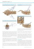 Pre-operative Planning for Endoscopic Lumbar ... - joimax GmbH - Page 4