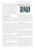Transforaminal Endoscopic Stenosis Surgery - joimax GmbH - Page 3