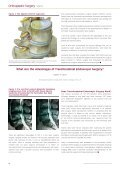 Endoscopic Spine Surgery – Now and Looking ... - joimax GmbH - Page 4